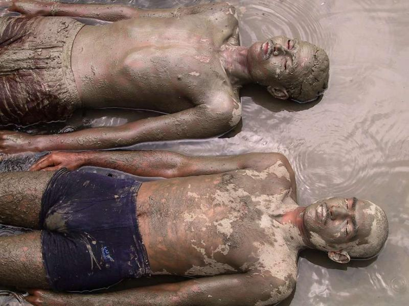 Mud therapy is very effective. Mud is used for giving coolness to body